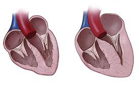 NT-pro BNP- сърдечен протеин